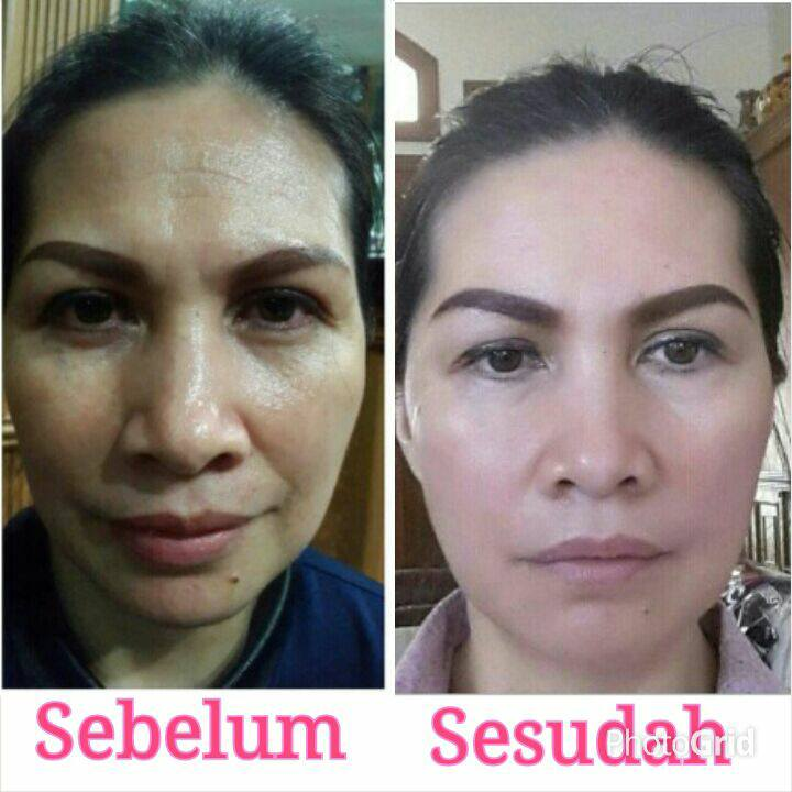Testimoni-Produk-Swisderm-Hydrating-Toning-Lotion-Indonesia